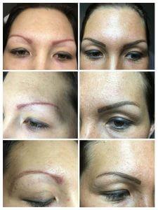 Oude permanent make-up van een andere specialiste gecorrigeerd en netjes gemaakt. De rode lijn aan de rechter buitenkant gaan we langzaam verwijderen uit de huid.