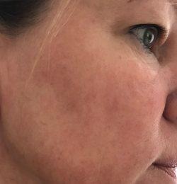 Na 4 weken environ…Is de huid mooier dan hij ooit was…